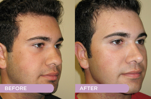 Nose Jobs Rhinoplasty Coping With The Healing Process Pope George Georgepopemd Com
